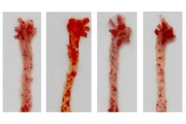 动脉斑块:现代人类50%死亡相关的一个病因,还和FDA有关